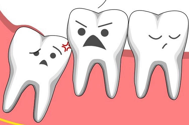 Biến chứng sau khi nhổ răng khôn có thể bạn chưa biết