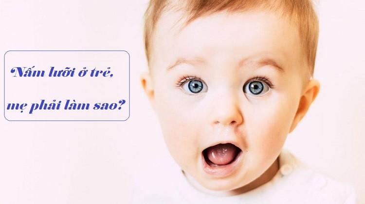 [Giải đáp] Nấm lưỡi ở trẻ em có nguy hiểm không?