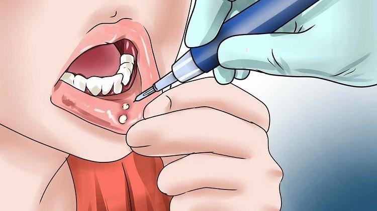 Làm gì khi trẻ bị nhiệt miệng? Cách trị nhiệt miệng ở trẻ tại nhà
