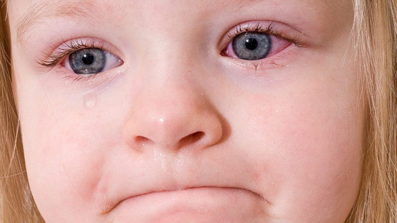 Đau mắt đỏ kiêng ăn gì? Nên ăn gì?