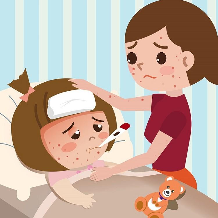 Bệnh thủy đậu ở trẻ em cần kiêng gì