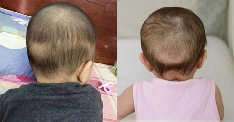 Rụng tóc vành khăn là gì? Nguyên nhân và cách chữa trị