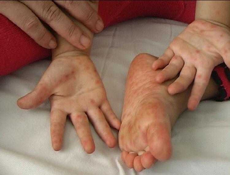 Bệnh chân tay miệng
