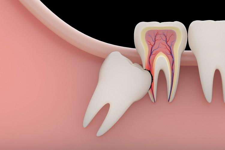tác dụng răng khôn
