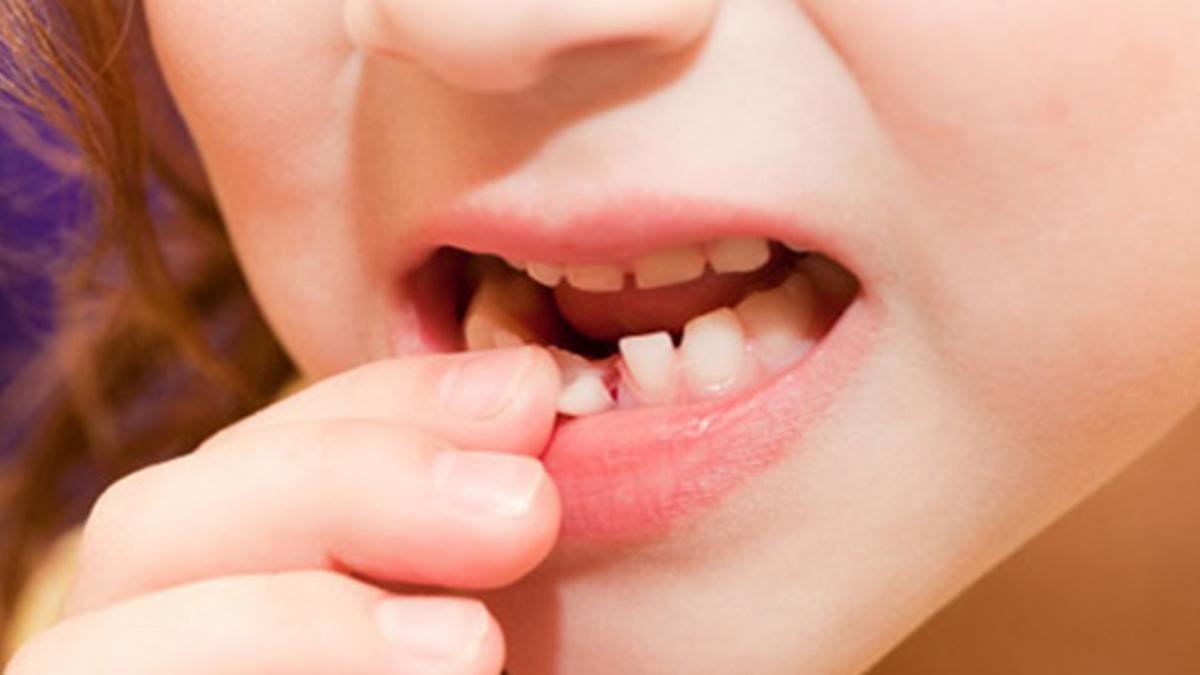 Phương pháp nhổ răng tại nhà