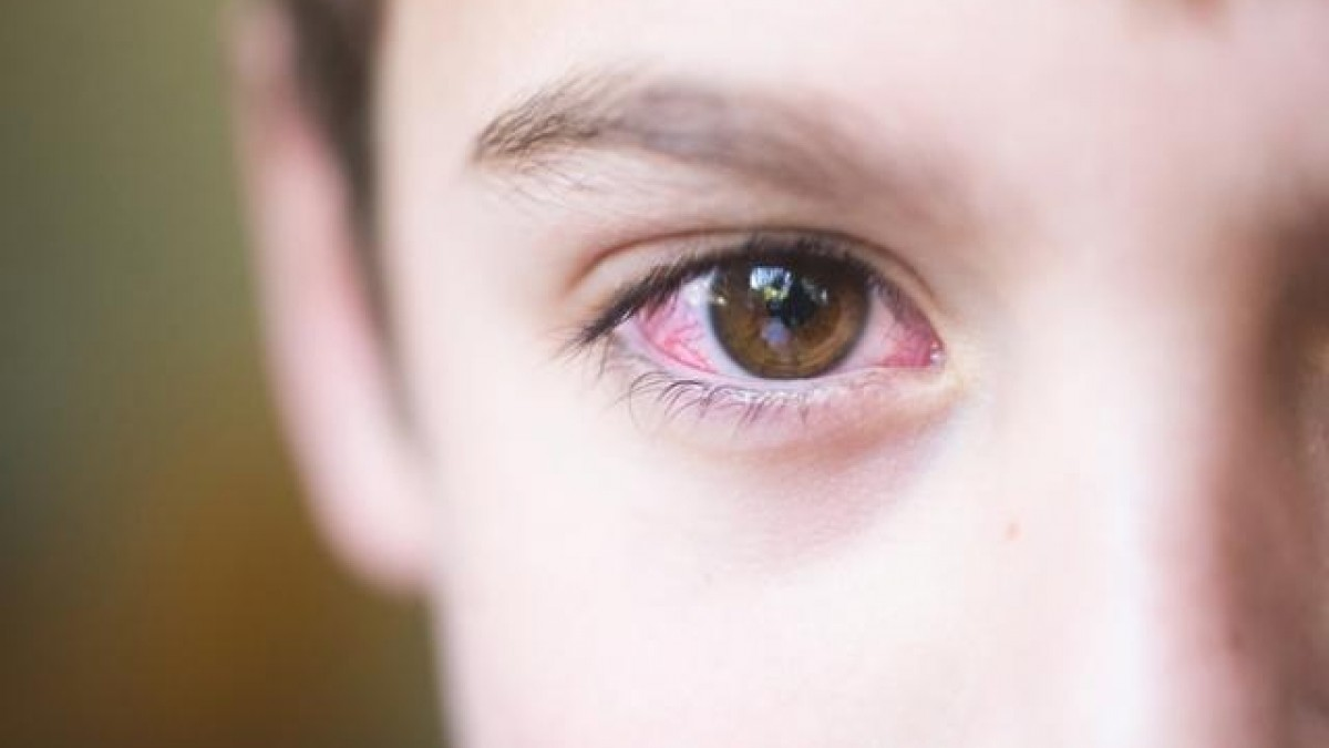 đau mắt đỏ kiêng ăn gì, đau mắt đỏ nên ăn gì, đau mắt đỏ nên kiêng gì, đau mắt đỏ kiêng những gì, trẻ bị đau mắt đỏ kiêng ăn gì, bị đau mắt đỏ kiêng ăn gì, đau mắt đỏ không nên ăn gì, bị đau mắt đỏ kiêng gì, đau mắt đỏ cần kiêng gì, đau mắt đỏ nên kiêng ăn gì, bị đau mắt đỏ nên kiêng gì, đau mắt đỏ nên ăn gì cho nhanh khỏi, đau mắt đỏ kiêng ăn những gì, bị đau mắt đỏ nên ăn gì, đau mắt đỏ phải kiêng gì, bệnh đau mắt đỏ kiêng gì, trẻ đau mắt đỏ kiêng ăn gì, đau mắt đỏ có kiêng gì không, đau mắt đỏ cần kiêng những gì