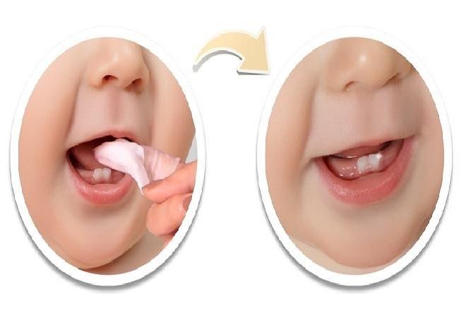 bé mấy tháng mọc răng, mấy tháng mọc răng, trẻ mấy tháng thì mọc răng, trẻ em mấy tháng mọc răng, em bé mấy tháng mọc răng, trẻ mọc răng sớm nhất là mấy tháng, trẻ em mấy tháng thì mọc răng, trẻ mấy tháng tuổi thì mọc răng, bé mấy tháng mới mọc răng, trẻ mấy tháng mọc răng là bình thường