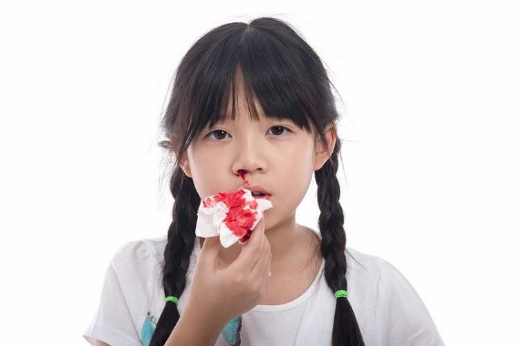 Chảy máu cam ở trẻ là bệnh gì